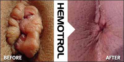 What Is Good For Hemorrhoids Hemorrhoid